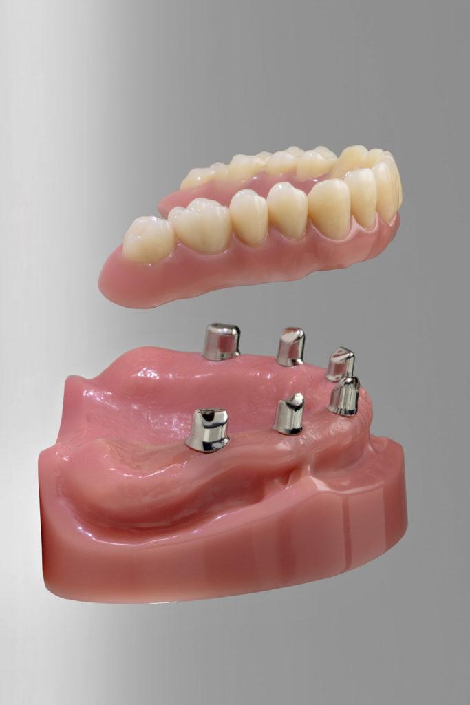 Implantatgetragene Versorgungen