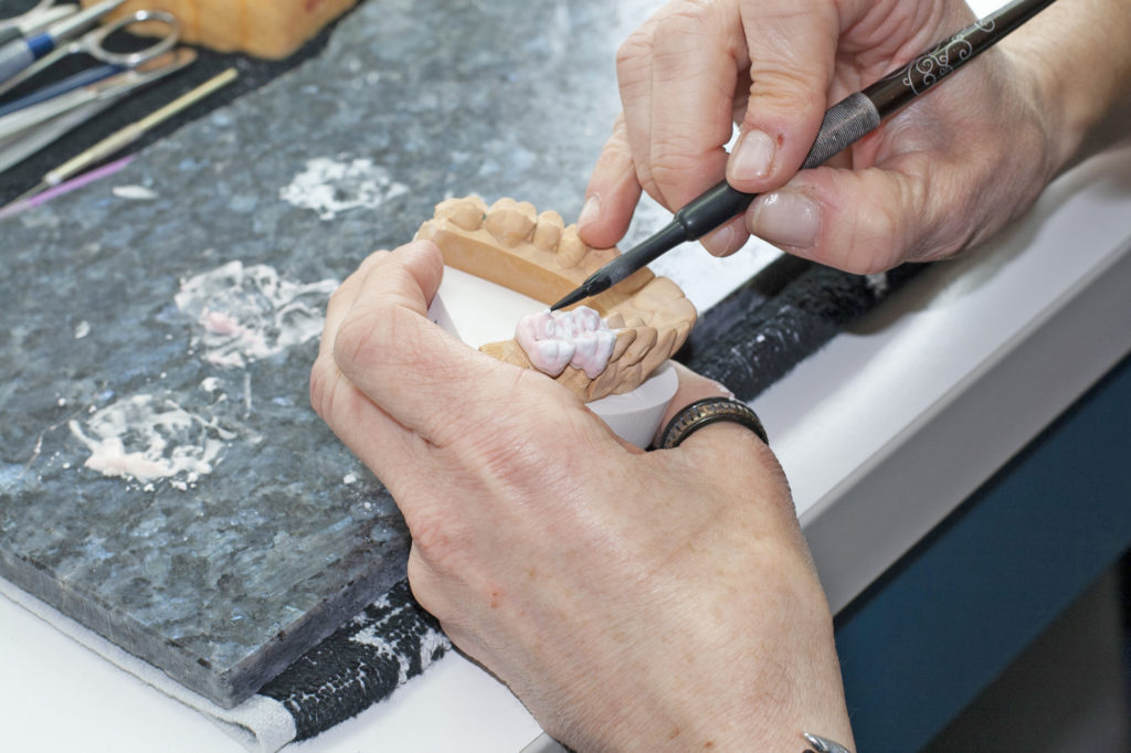 Keramik, Verblendungen, Alternativen